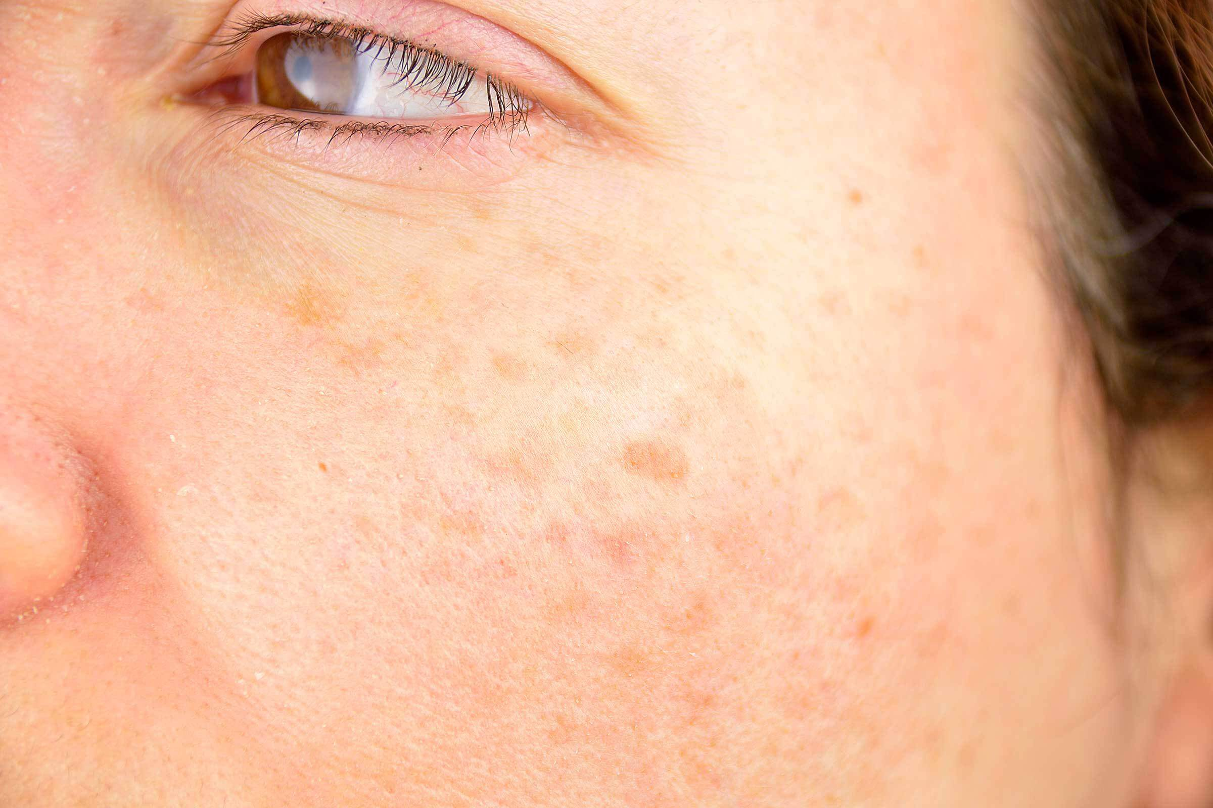 Age Spots - Early Signs of Aging