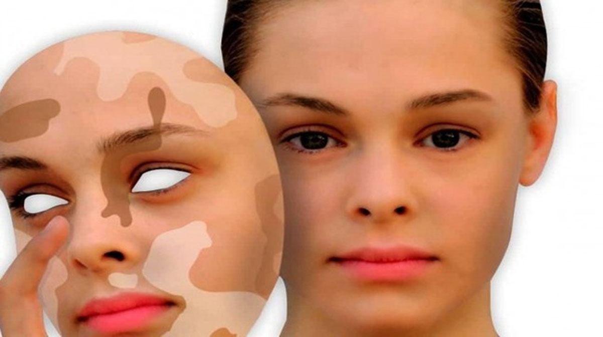 What Are The Symptoms And Causes Of Vitiligo Live Enhanced