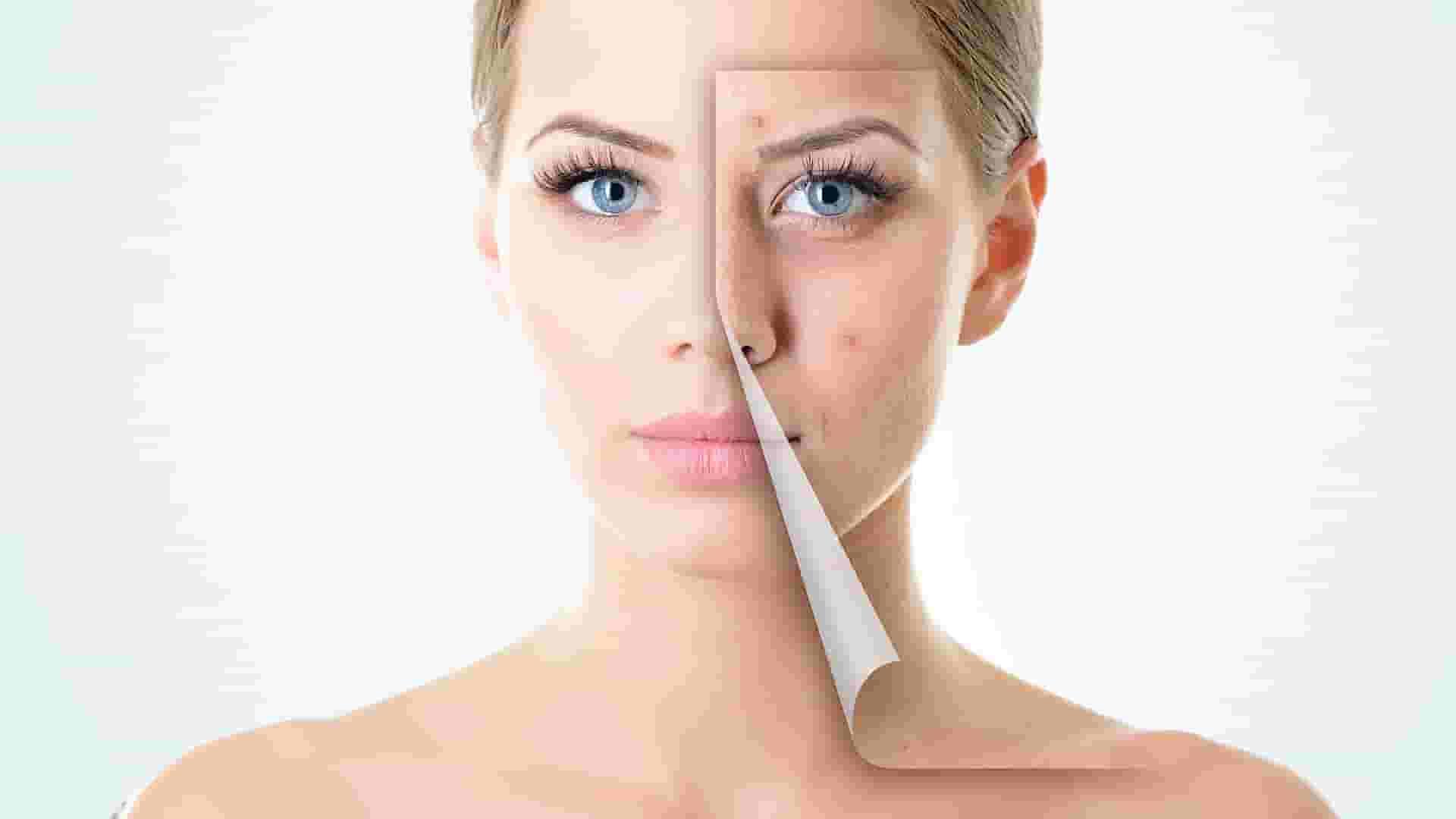 symptoms of Vitiligo