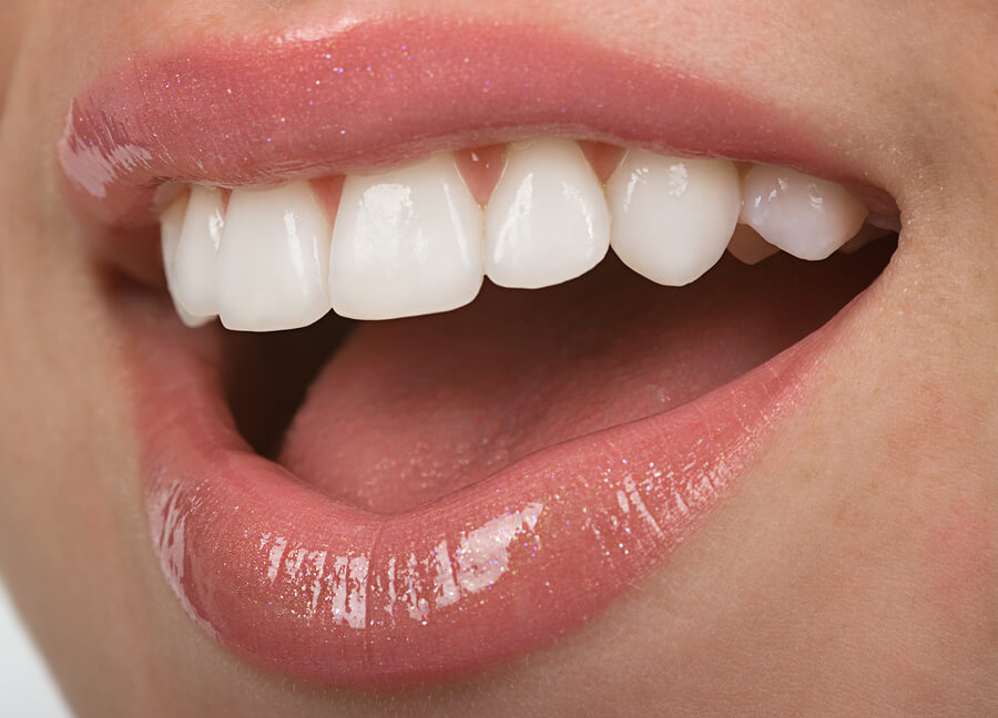 Home Remedies for Instant Teeth Whitening