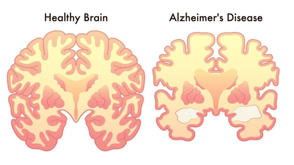 What is Alzheimer's?