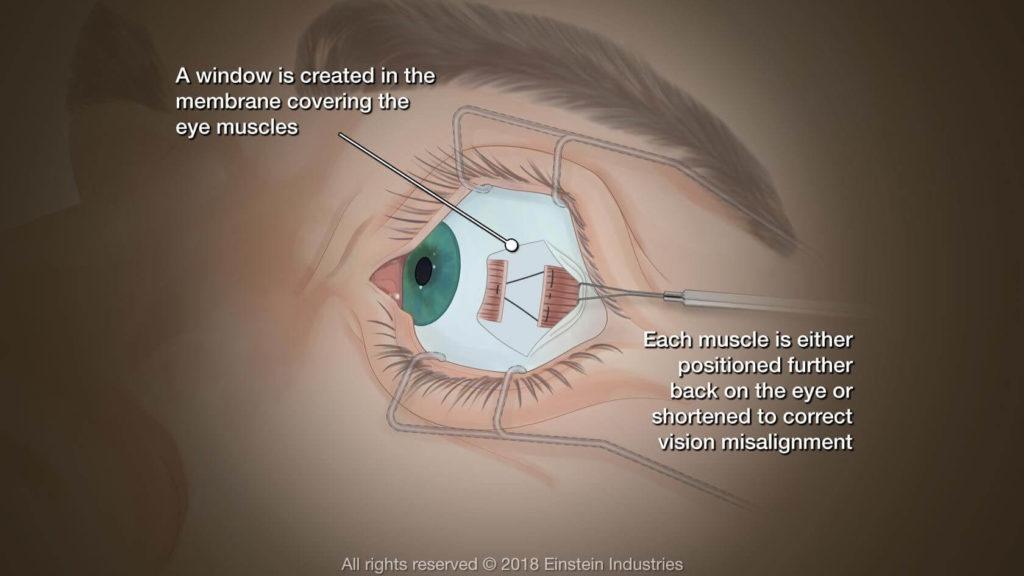 eye surgery 4 - Eye Muscle Surgery