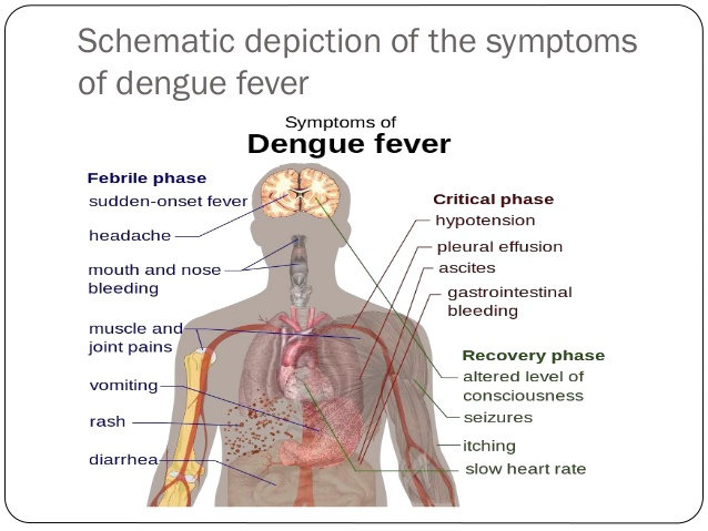 dengue-fever-symptoms