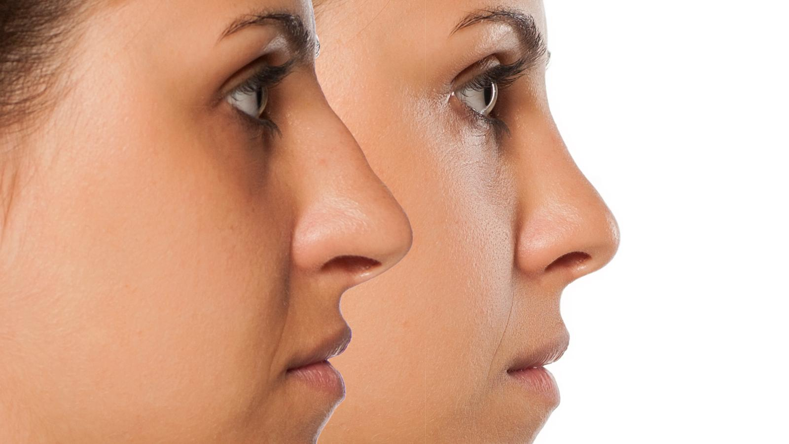 Nose threads vs Nose Fillers