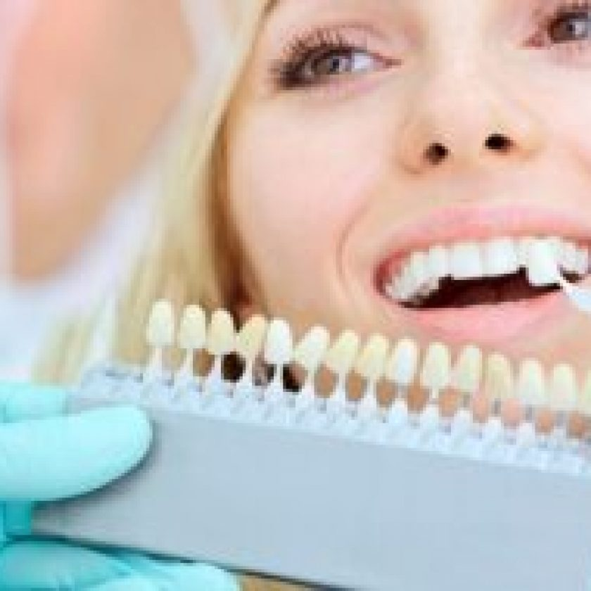 Over The Counter Whitening Worth
