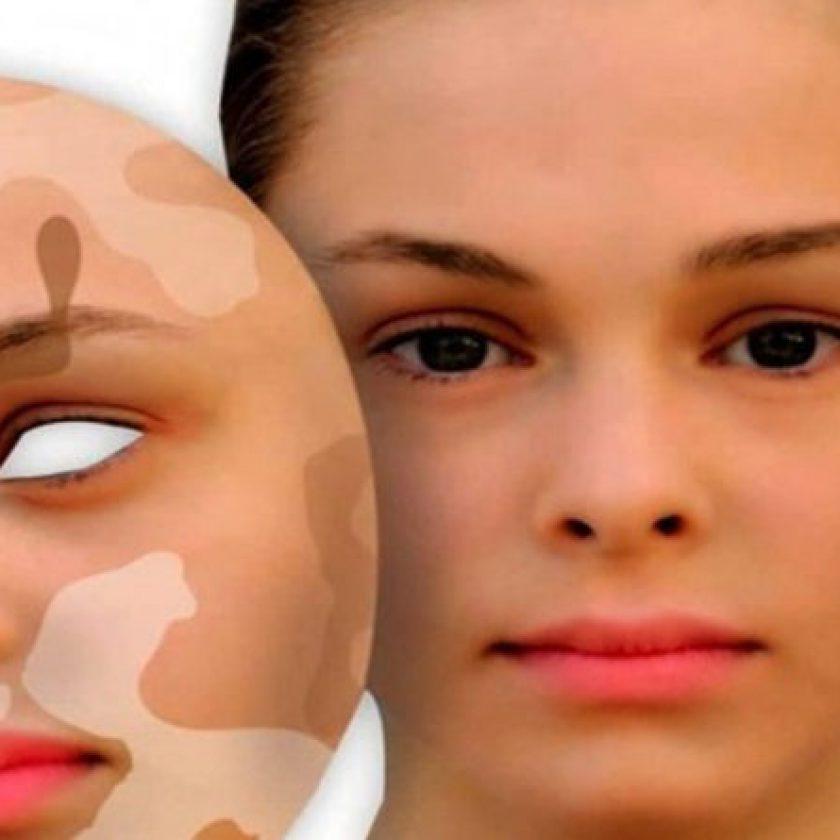symptoms and causes of Vitiligo