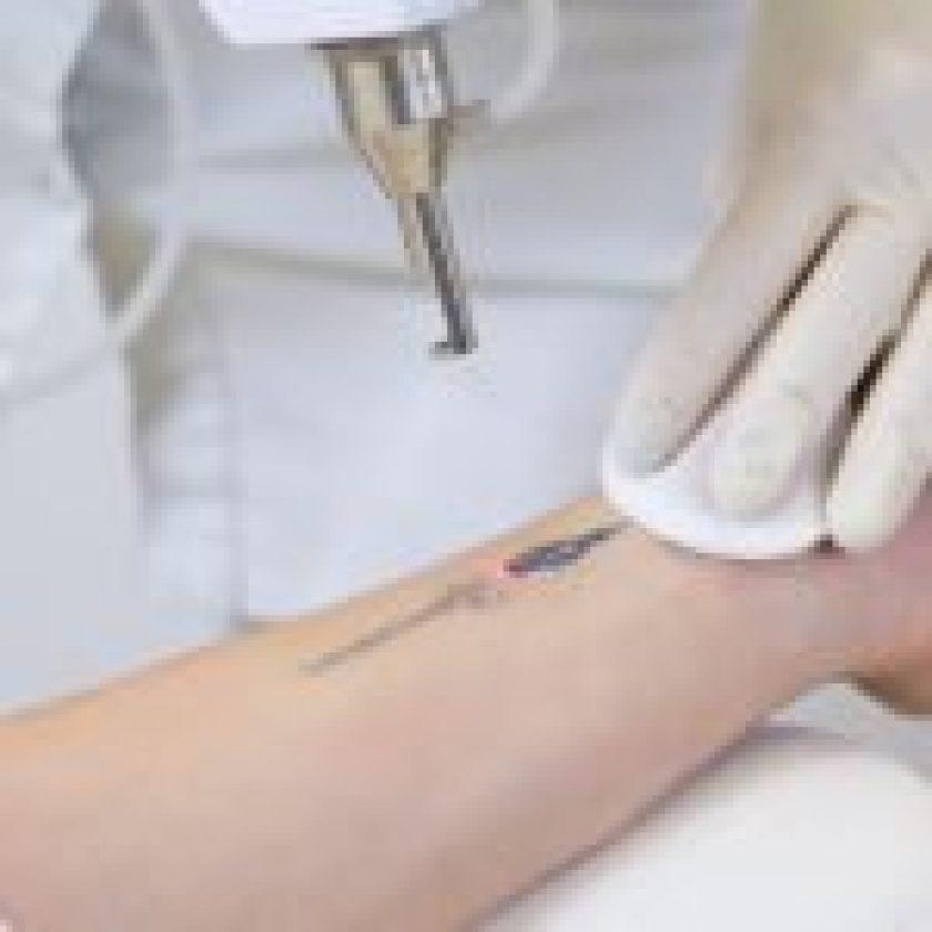 tattoo remove